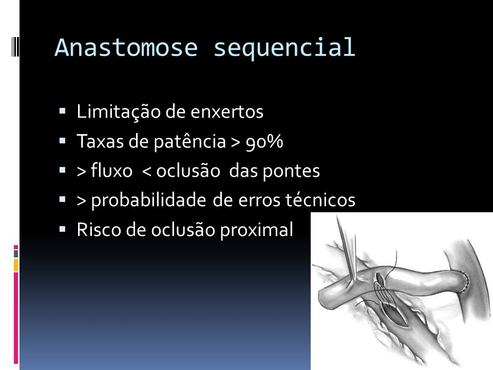 Anastomose sequencial