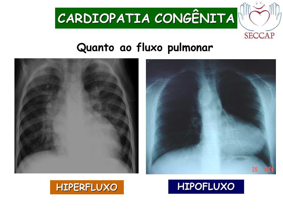 CARDIOPATIA CONGÊNITA Quanto ao fluxo pulmonar