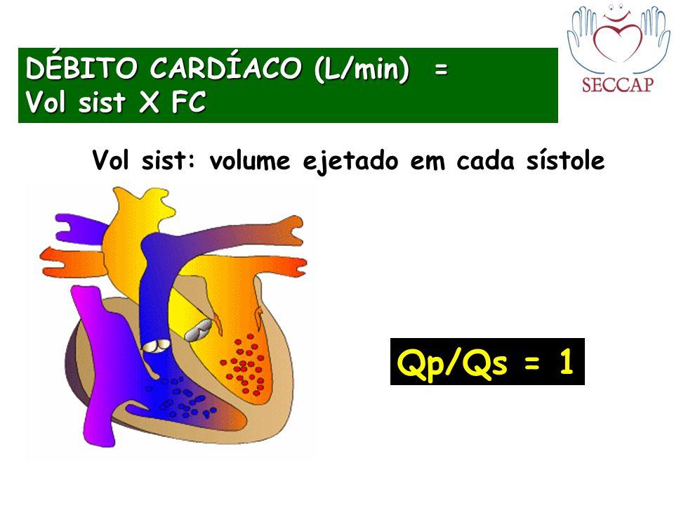 Qp/Qs = 1 DÉBITO CARDÍACO (L/min) = Vol sist X FC