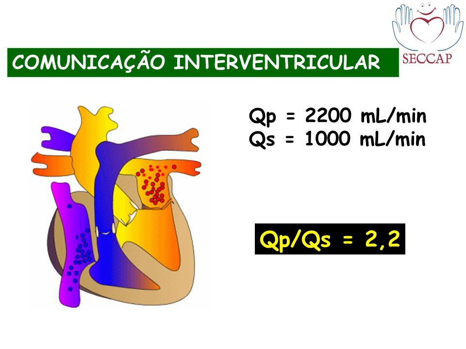Qp/Qs = 2,2 COMUNICAÇÃO INTERVENTRICULAR Qp = 2200 mL/min