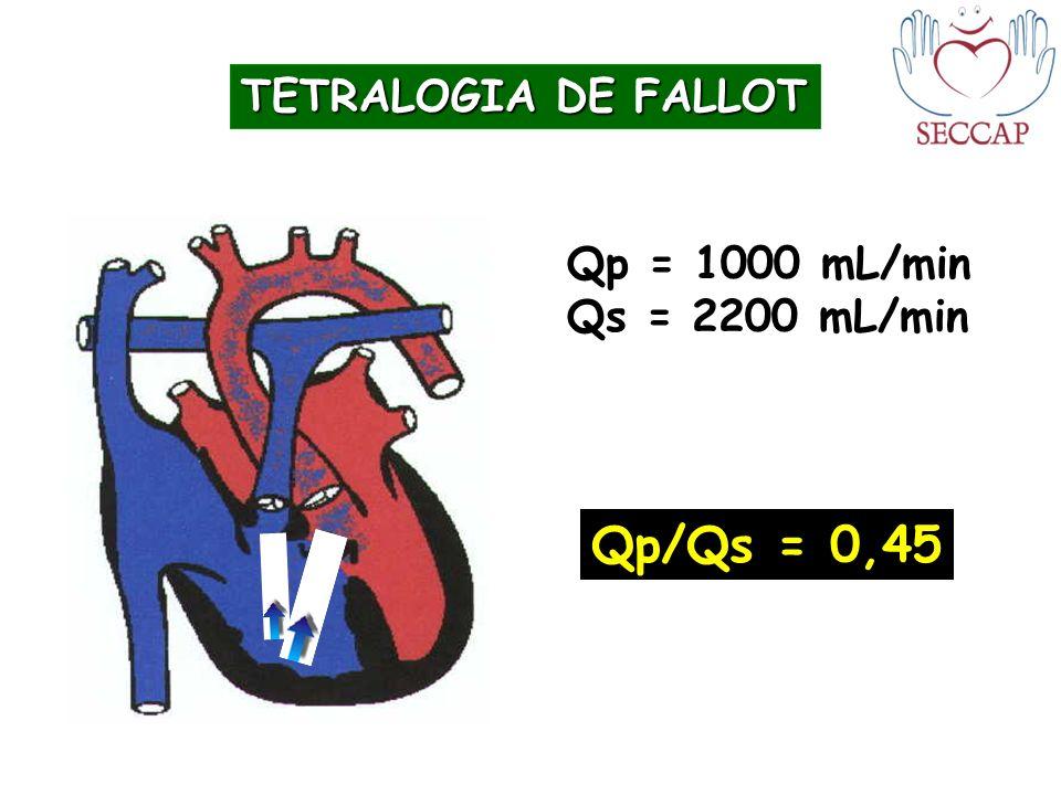 TETRALOGIA DE FALLOT Qp = 1000 mL/min Qs = 2200 mL/min Qp/Qs = 0,45