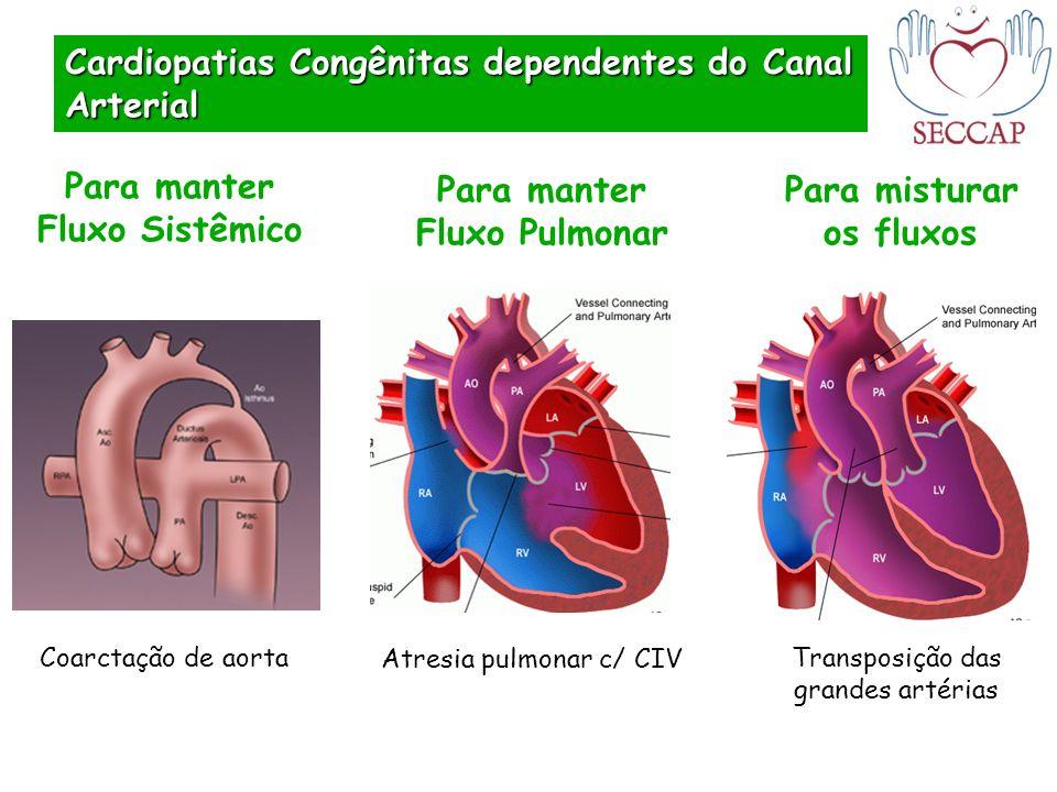 Transposição das grandes artérias