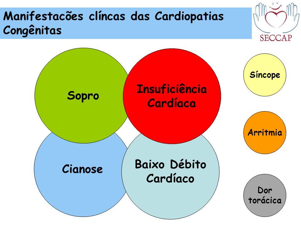 Sopro Insuficiência Cardíaca Cianose Baixo Débito Cardíaco