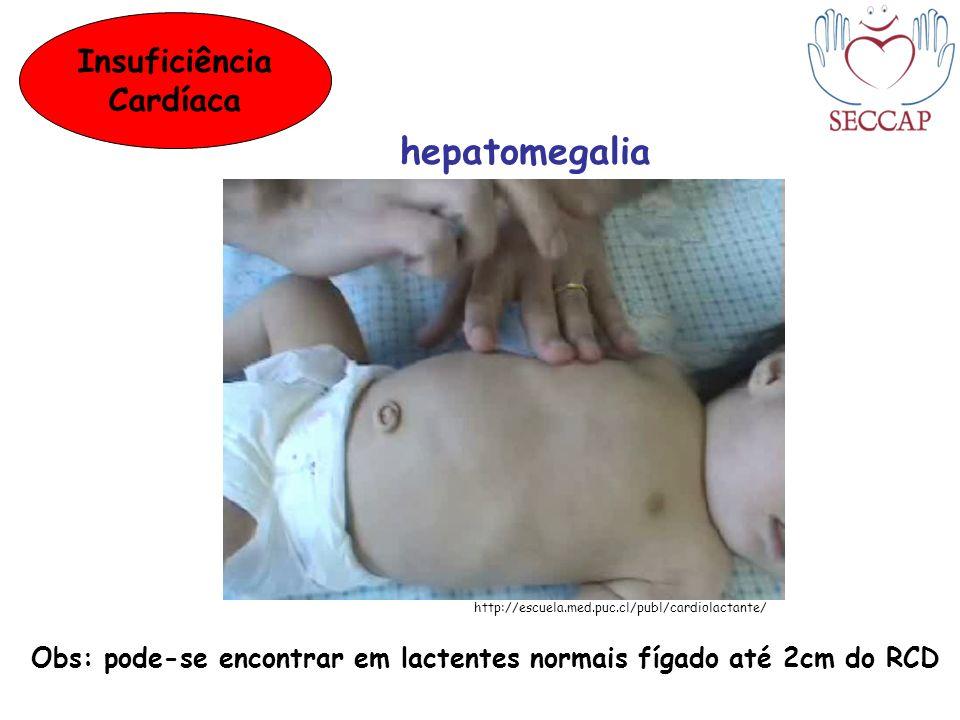 hepatomegalia Insuficiência Cardíaca