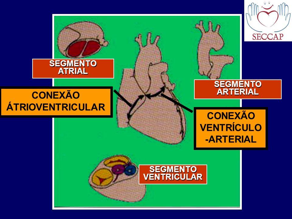 CONEXÃO VENTRÍCULO-ARTERIAL