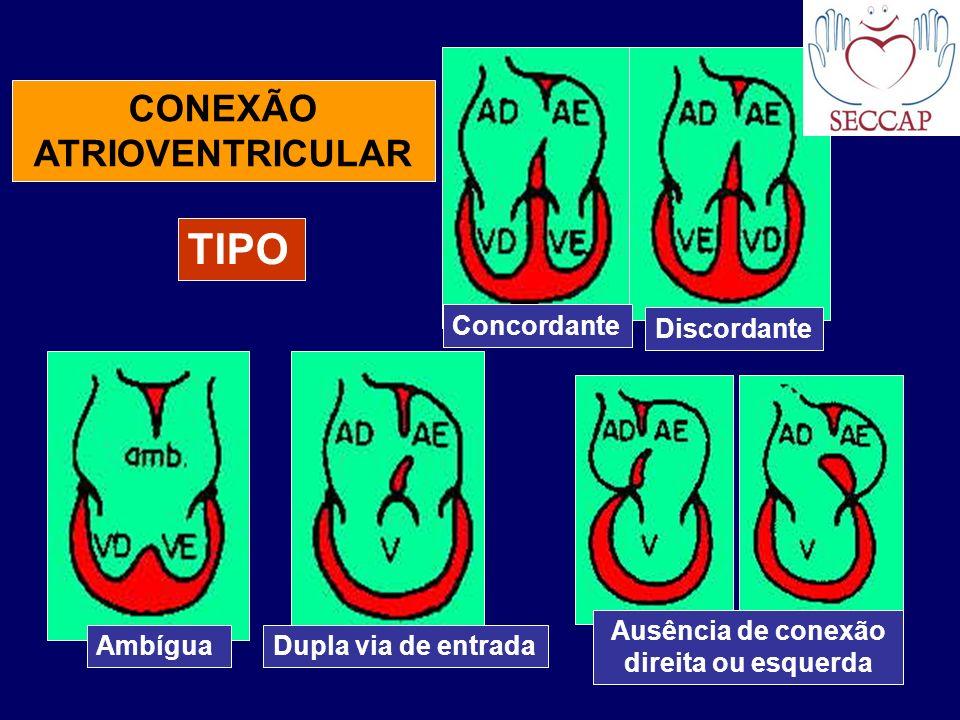 CONEXÃO ATRIOVENTRICULAR