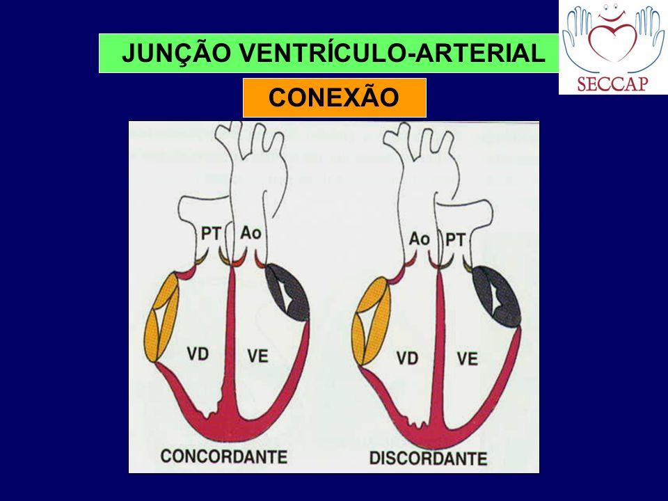 JUNÇÃO VENTRÍCULO-ARTERIAL