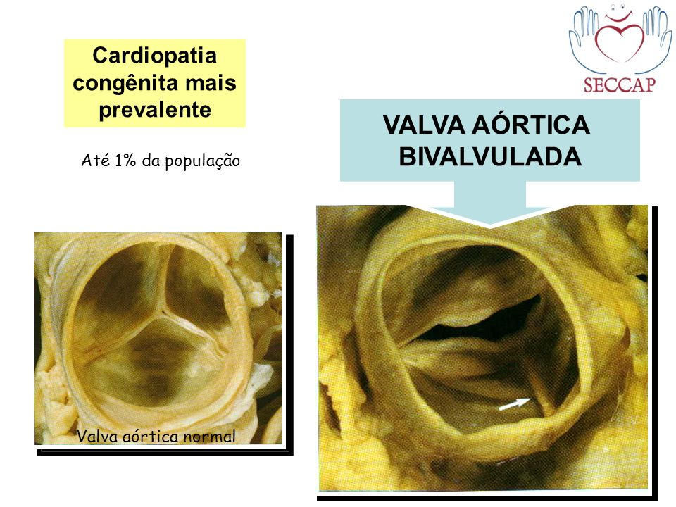 Cardiopatia congênita mais prevalente