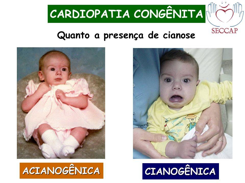 CARDIOPATIA CONGÊNITA Quanto a presença de cianose