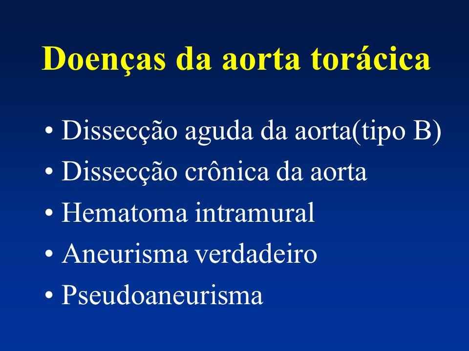 Doenças da aorta torácica