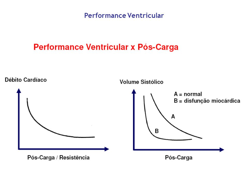 Performance Ventricular