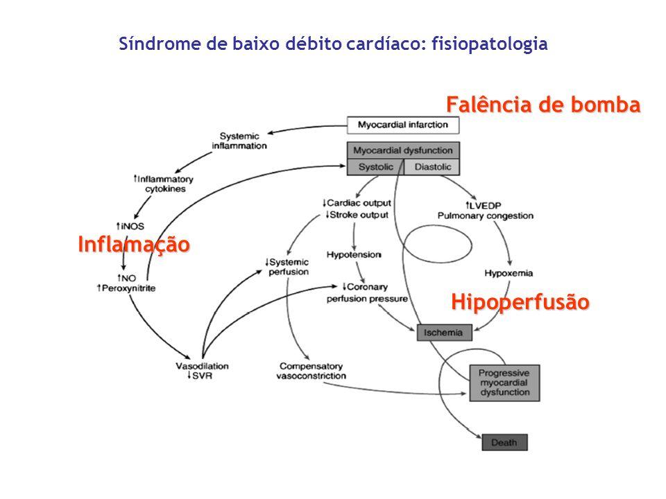 Síndrome de baixo débito cardíaco: fisiopatologia