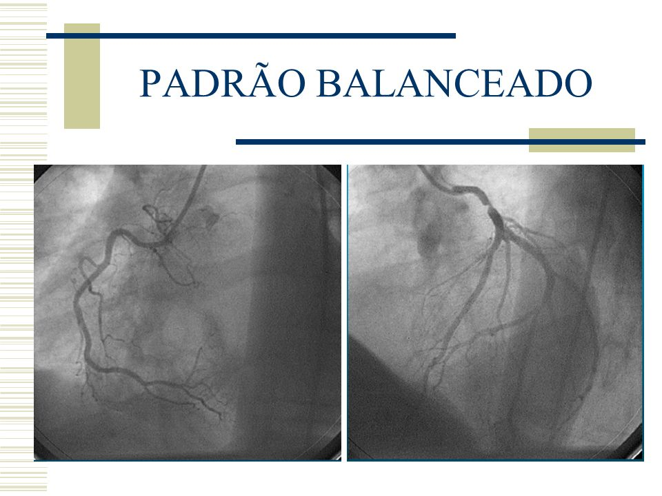 PADRÃO BALANCEADO