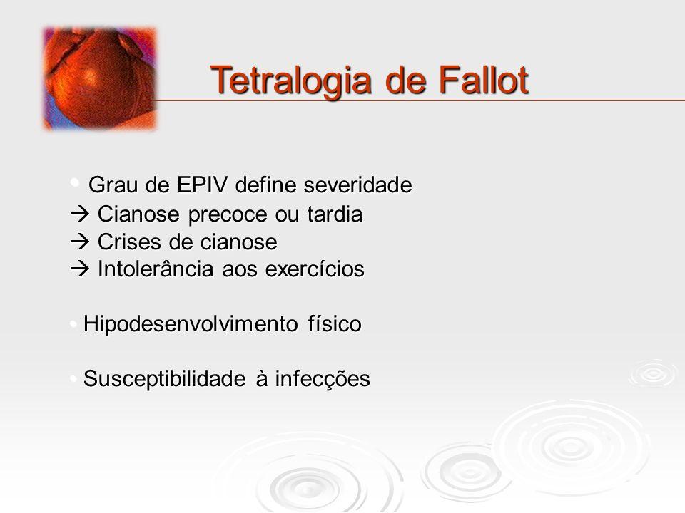 Tetralogia de Fallot Grau de EPIV define severidade