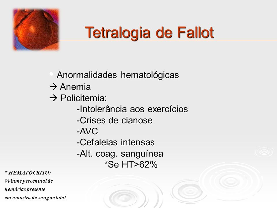 Tetralogia de Fallot Anormalidades hematológicas  Anemia