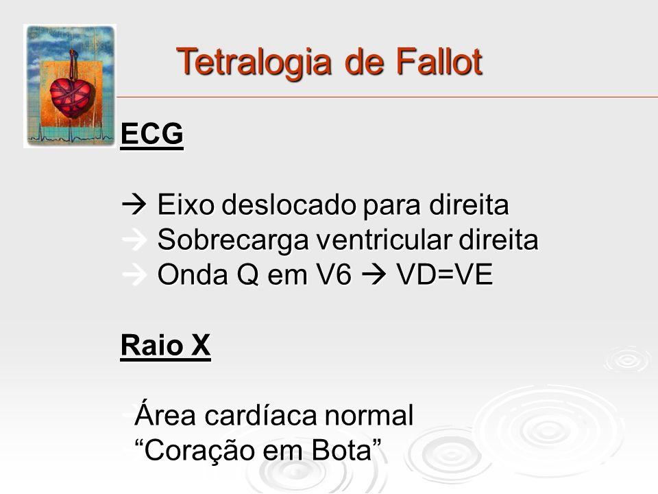Tetralogia de Fallot ECG  Eixo deslocado para direita