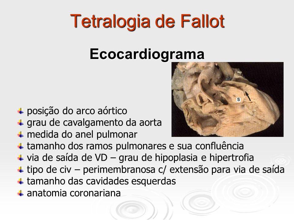 Tetralogia de Fallot Ecocardiograma posição do arco aórtico