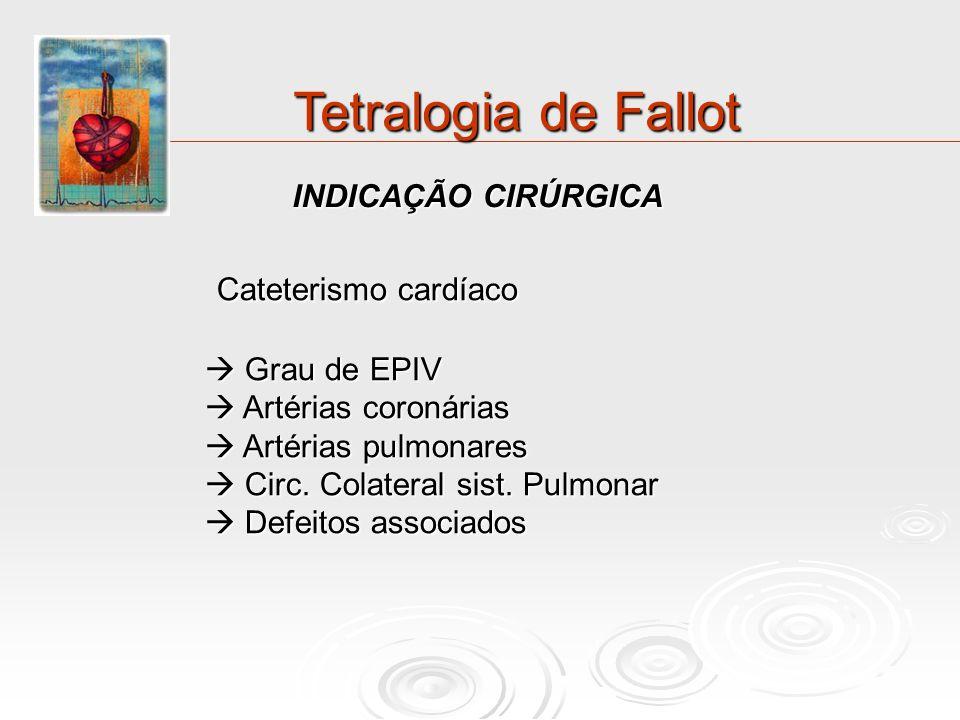 Tetralogia de Fallot Cateterismo cardíaco INDICAÇÃO CIRÚRGICA