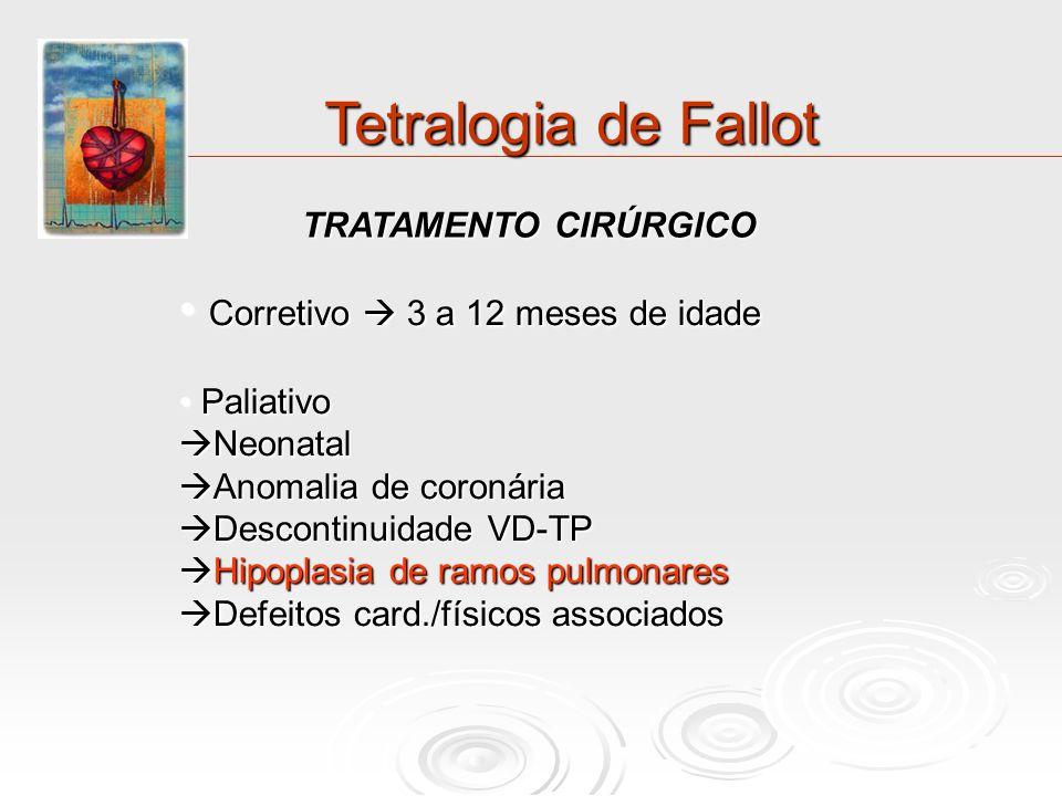 Tetralogia de Fallot Corretivo  3 a 12 meses de idade