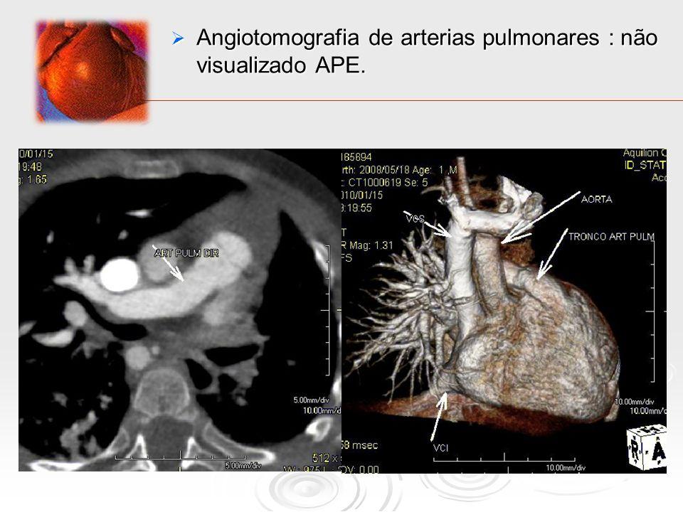 Angiotomografia de arterias pulmonares : não visualizado APE.