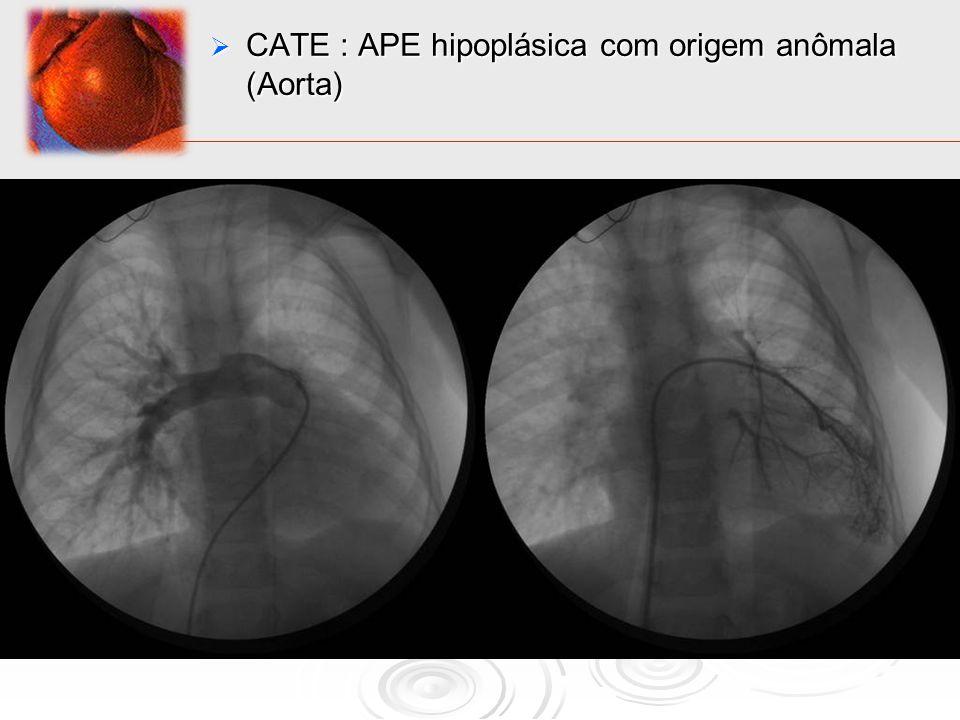 CATE : APE hipoplásica com origem anômala (Aorta)