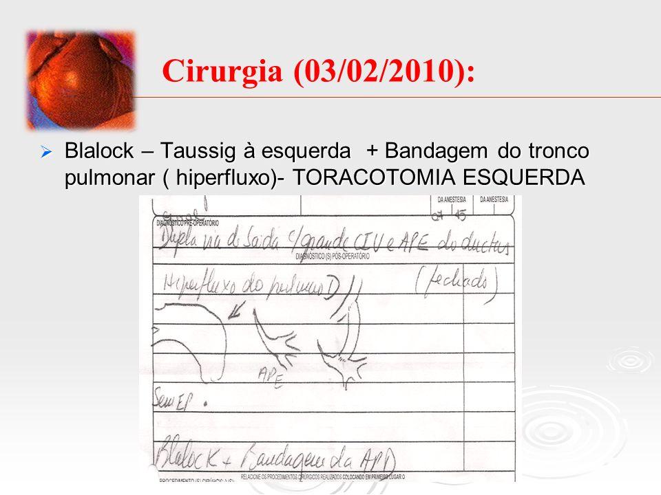 Cirurgia (03/02/2010):Blalock – Taussig à esquerda + Bandagem do tronco pulmonar ( hiperfluxo)- TORACOTOMIA ESQUERDA.