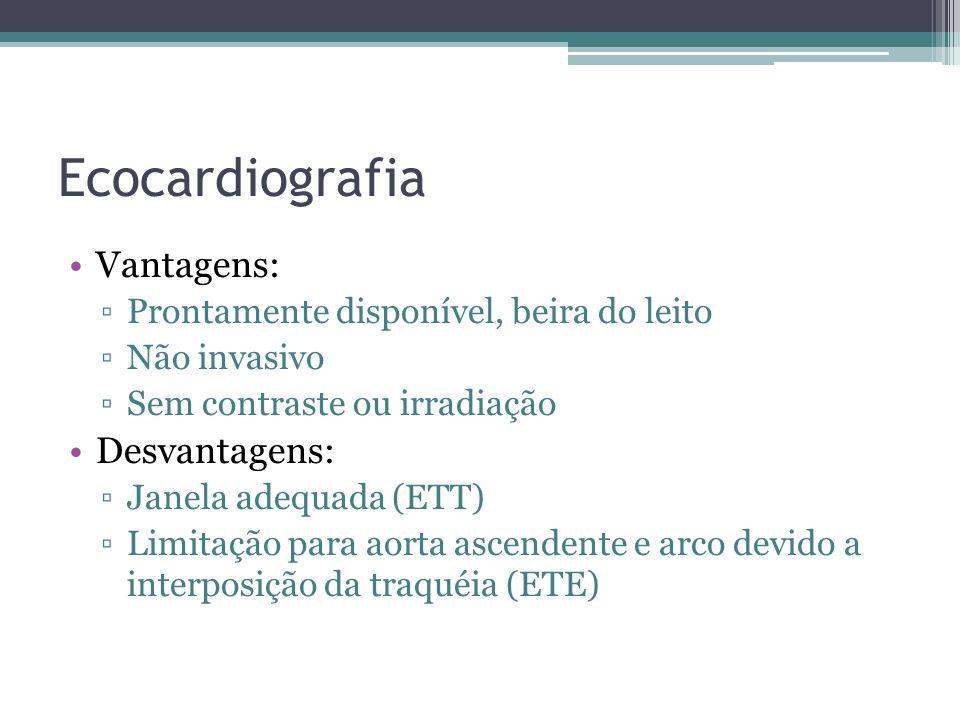 Ecocardiografia Vantagens: Desvantagens: