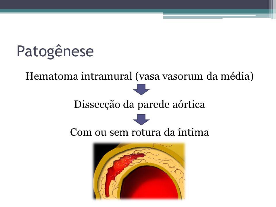 Patogênese Hematoma intramural (vasa vasorum da média) Dissecção da parede aórtica Com ou sem rotura da íntima