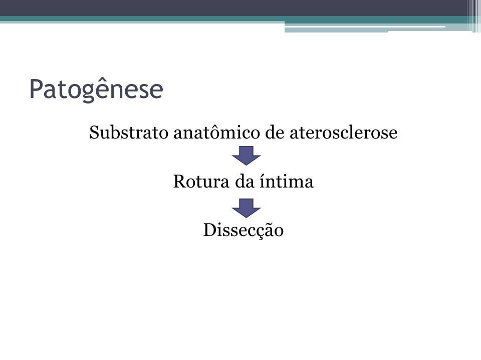 Substrato anatômico de aterosclerose Rotura da íntima Dissecção