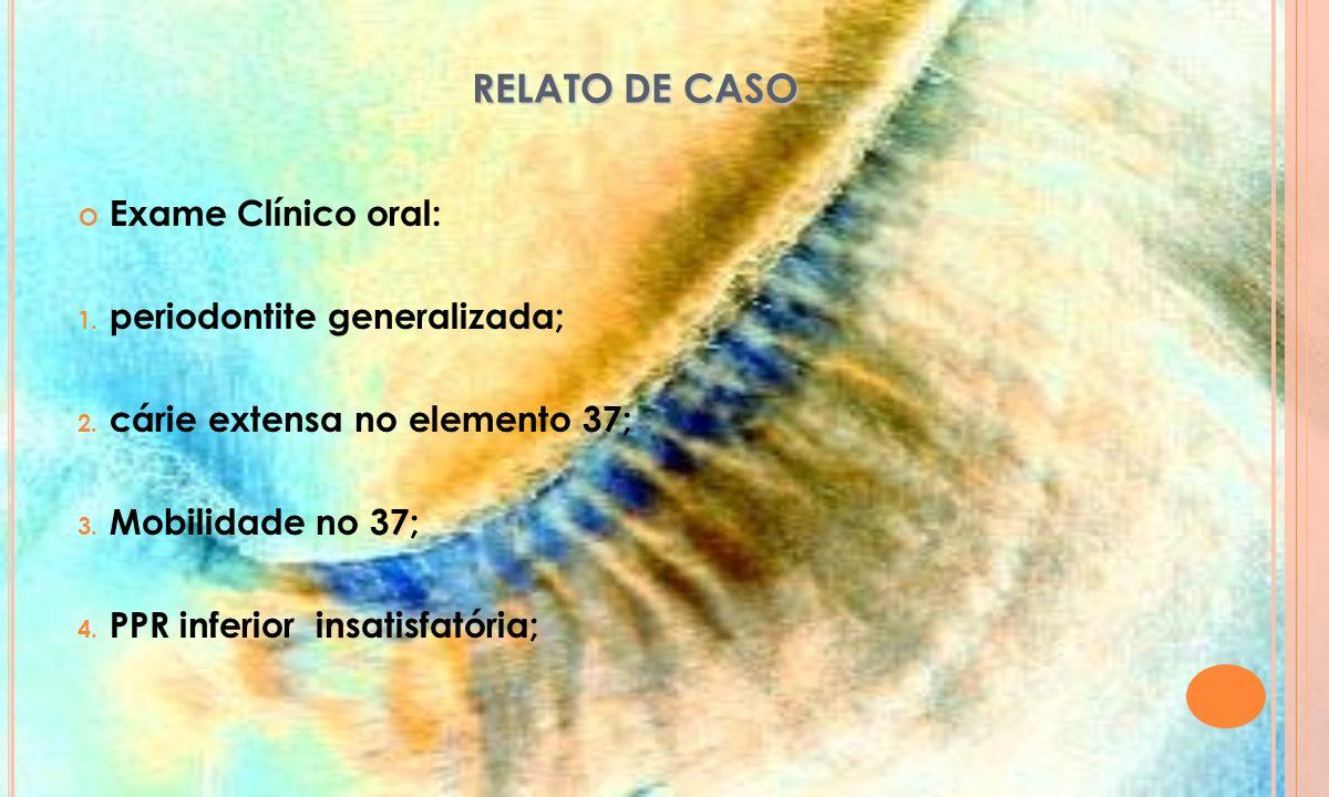 RELATO DE CASO Exame Clínico oral: periodontite generalizada;