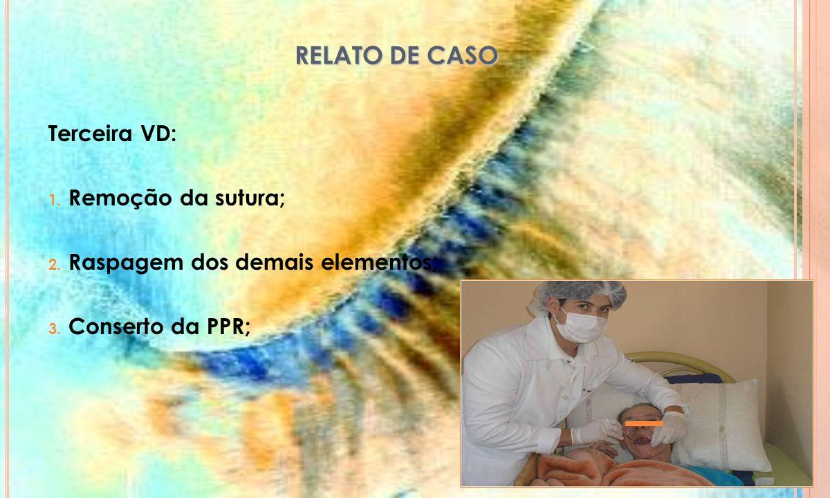 RELATO DE CASO Terceira VD: Remoção da sutura;