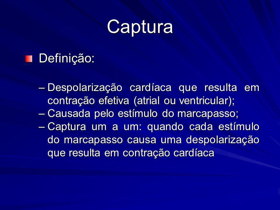 Captura Definição: Despolarização cardíaca que resulta em contração efetiva (atrial ou ventricular);