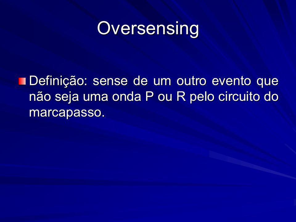 Oversensing Definição: sense de um outro evento que não seja uma onda P ou R pelo circuito do marcapasso.