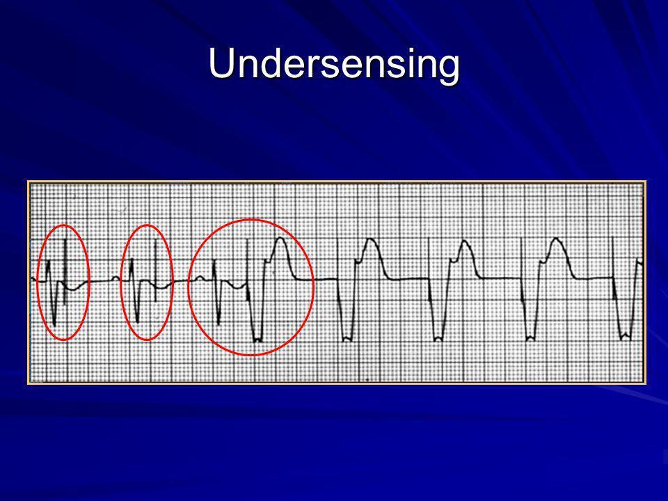 Undersensing