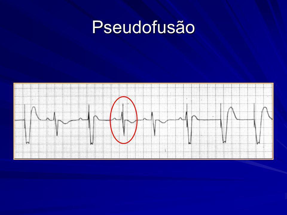 Pseudofusão