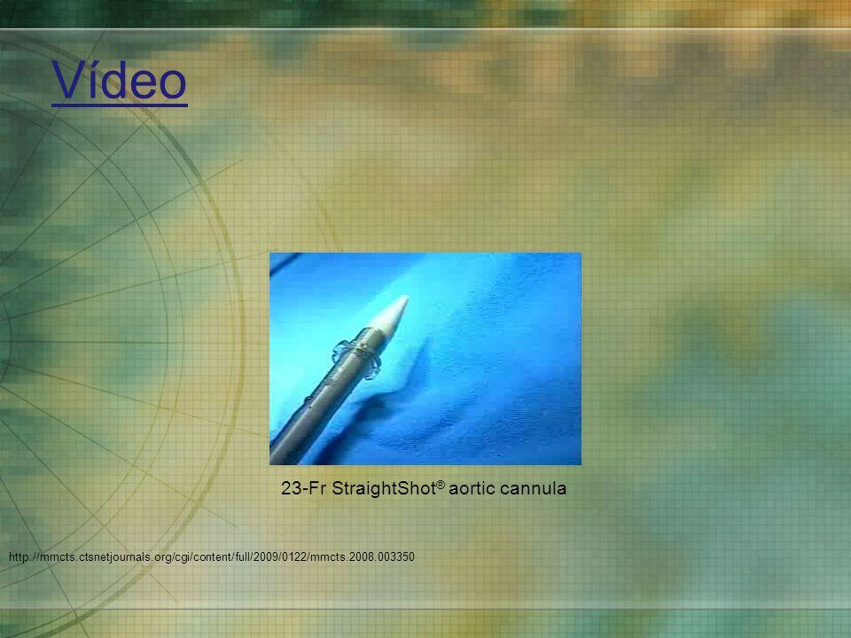 Vídeo 23-Fr StraightShot® aortic cannula