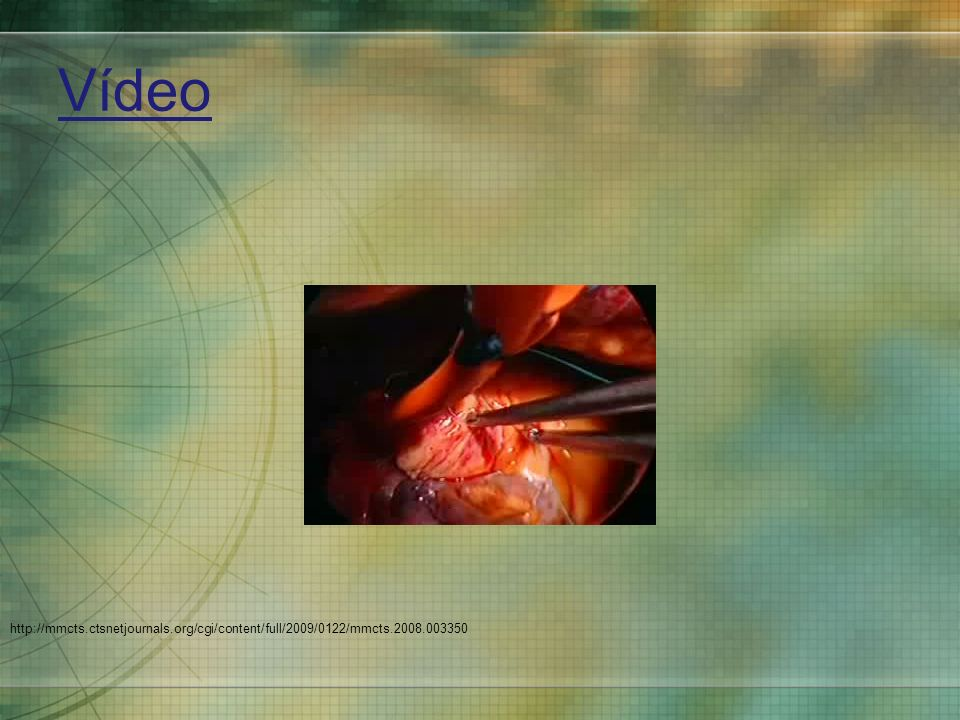 Vídeo Cardioplegia and aortic venting cannula are placed in a conventional order.