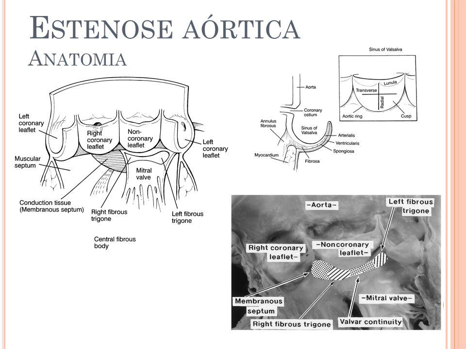 Estenose aórtica Anatomia