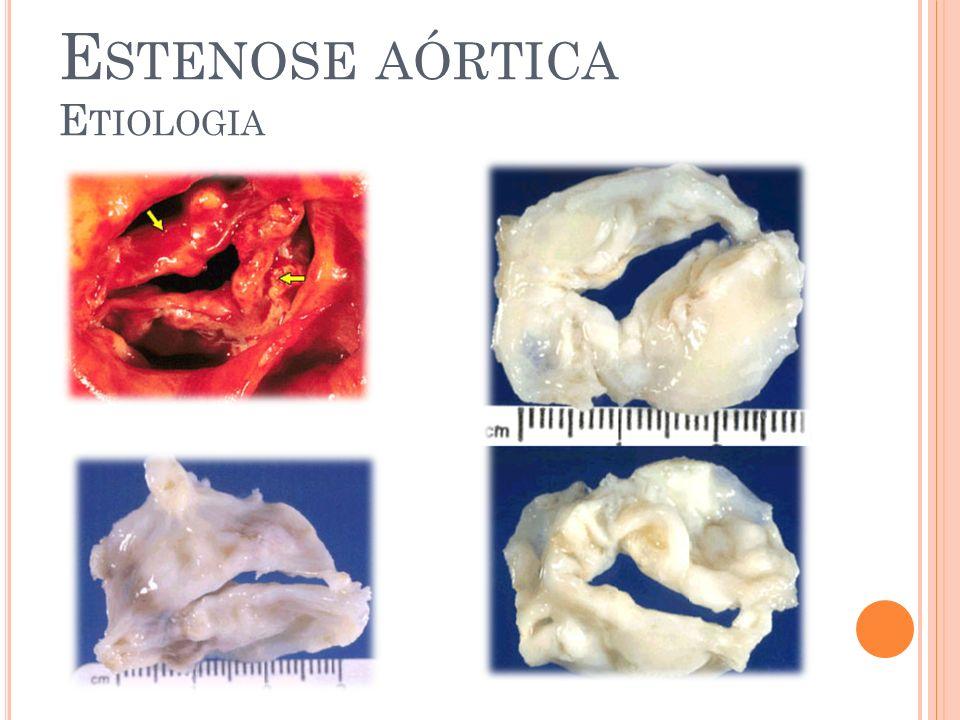 Estenose aórtica Etiologia