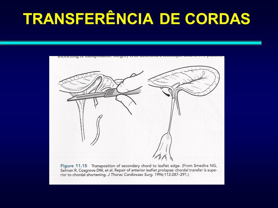 TRANSFERÊNCIA DE CORDAS
