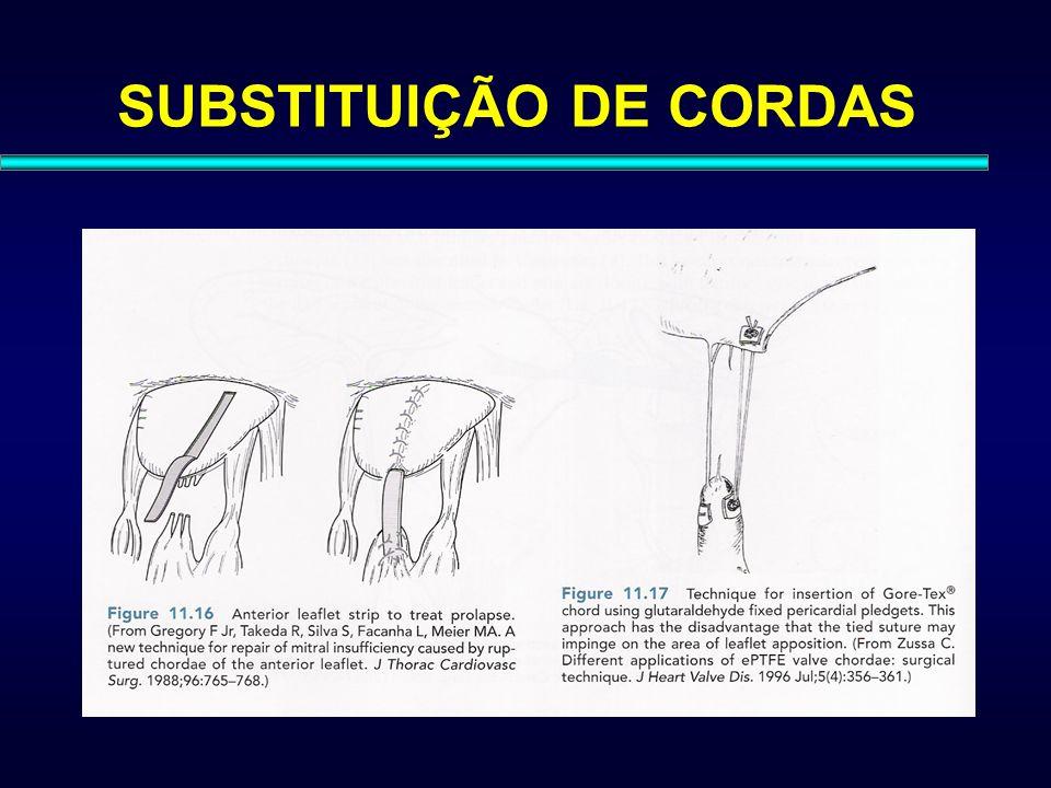 SUBSTITUIÇÃO DE CORDAS