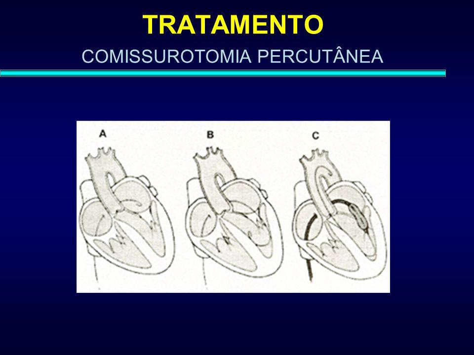TRATAMENTO COMISSUROTOMIA PERCUTÂNEA