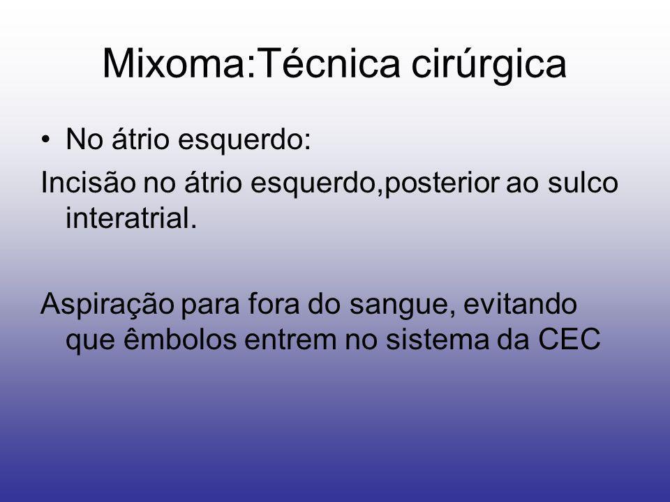 Mixoma:Técnica cirúrgica