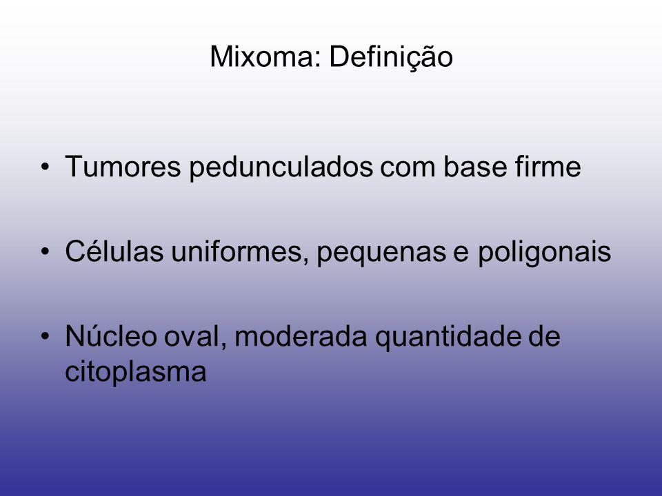 Mixoma: Definição Tumores pedunculados com base firme.
