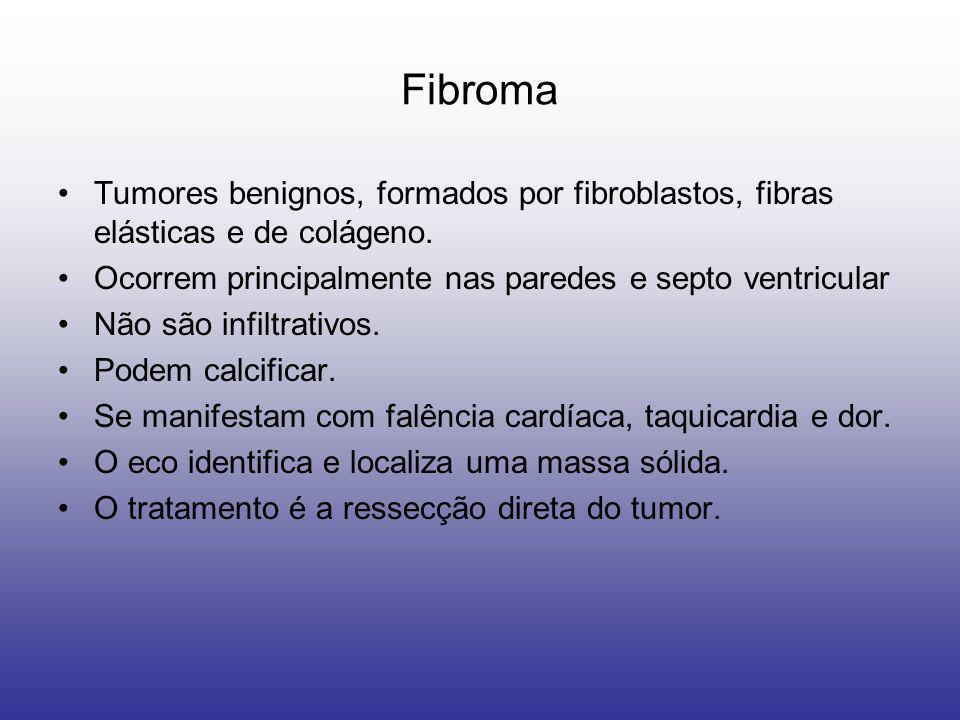 FibromaTumores benignos, formados por fibroblastos, fibras elásticas e de colágeno. Ocorrem principalmente nas paredes e septo ventricular.
