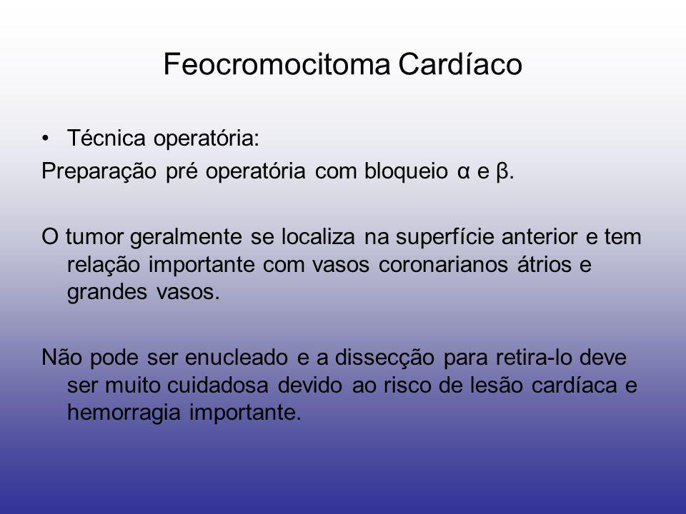 Feocromocitoma Cardíaco