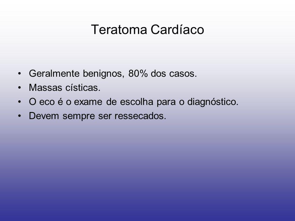 Teratoma Cardíaco Geralmente benignos, 80% dos casos. Massas císticas.