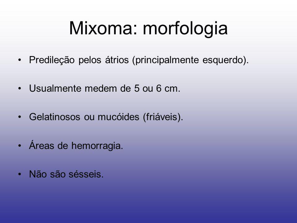Mixoma: morfologia Predileção pelos átrios (principalmente esquerdo).