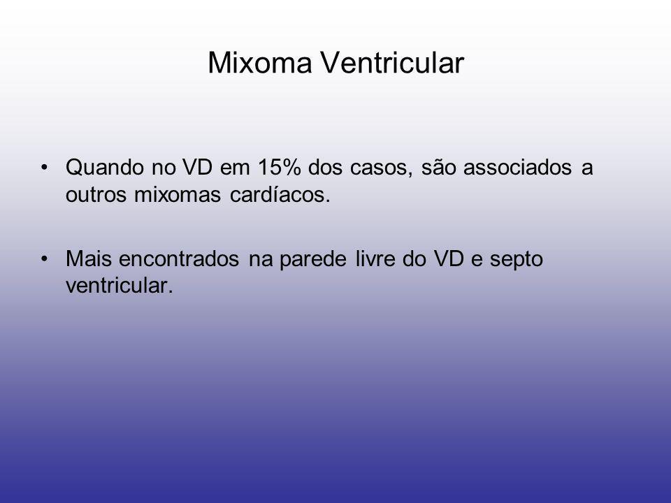Mixoma Ventricular Quando no VD em 15% dos casos, são associados a outros mixomas cardíacos.