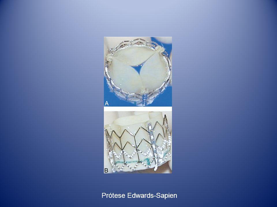 Prótese Edwards-Sapien